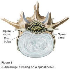 disc bulge pressing on spinal nerve